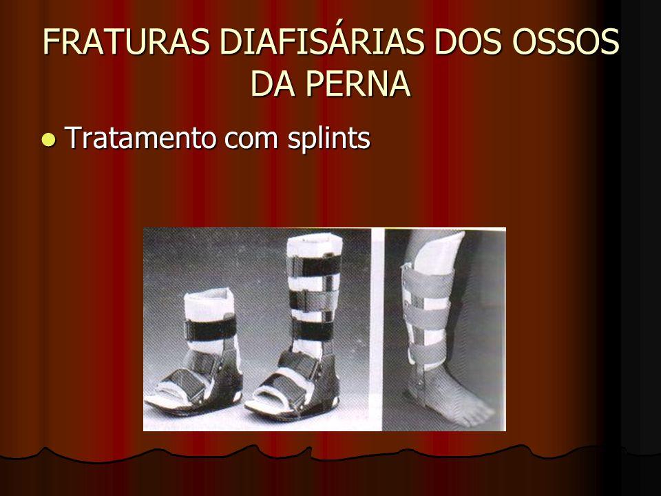 FRATURAS DIAFISÁRIAS DOS OSSOS DA PERNA Tratamento com splints Tratamento com splints