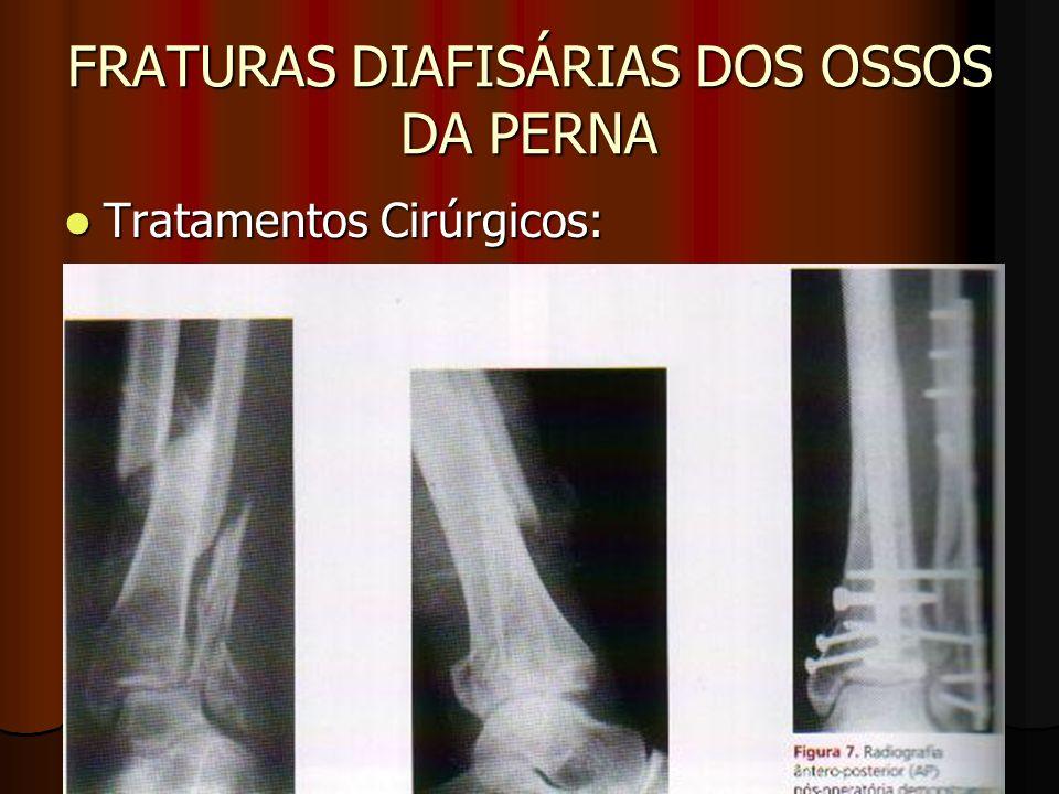FRATURAS DIAFISÁRIAS DOS OSSOS DA PERNA Tratamentos Cirúrgicos: Tratamentos Cirúrgicos: