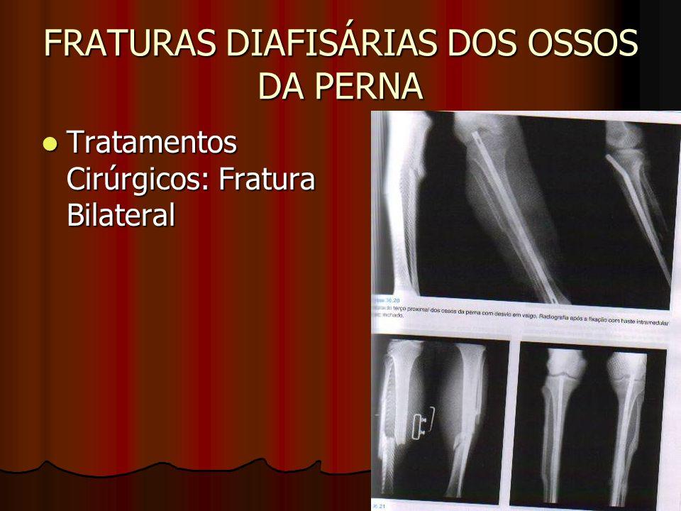 FRATURAS DIAFISÁRIAS DOS OSSOS DA PERNA Tratamentos Cirúrgicos: Fratura Bilateral Tratamentos Cirúrgicos: Fratura Bilateral