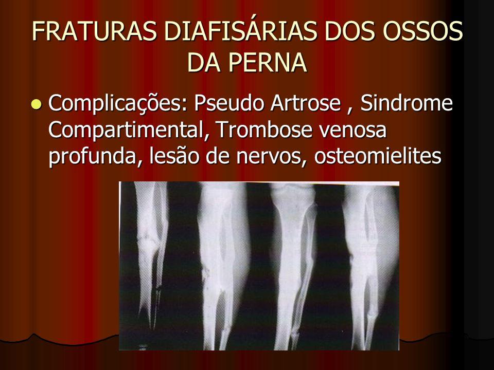 FRATURAS DIAFISÁRIAS DOS OSSOS DA PERNA Complicações: Pseudo Artrose, Sindrome Compartimental, Trombose venosa profunda, lesão de nervos, osteomielite