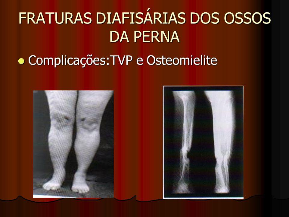 FRATURAS DIAFISÁRIAS DOS OSSOS DA PERNA Complicações:TVP e Osteomielite Complicações:TVP e Osteomielite