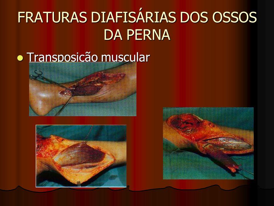 FRATURAS DIAFISÁRIAS DOS OSSOS DA PERNA Transposição muscular Transposição muscular