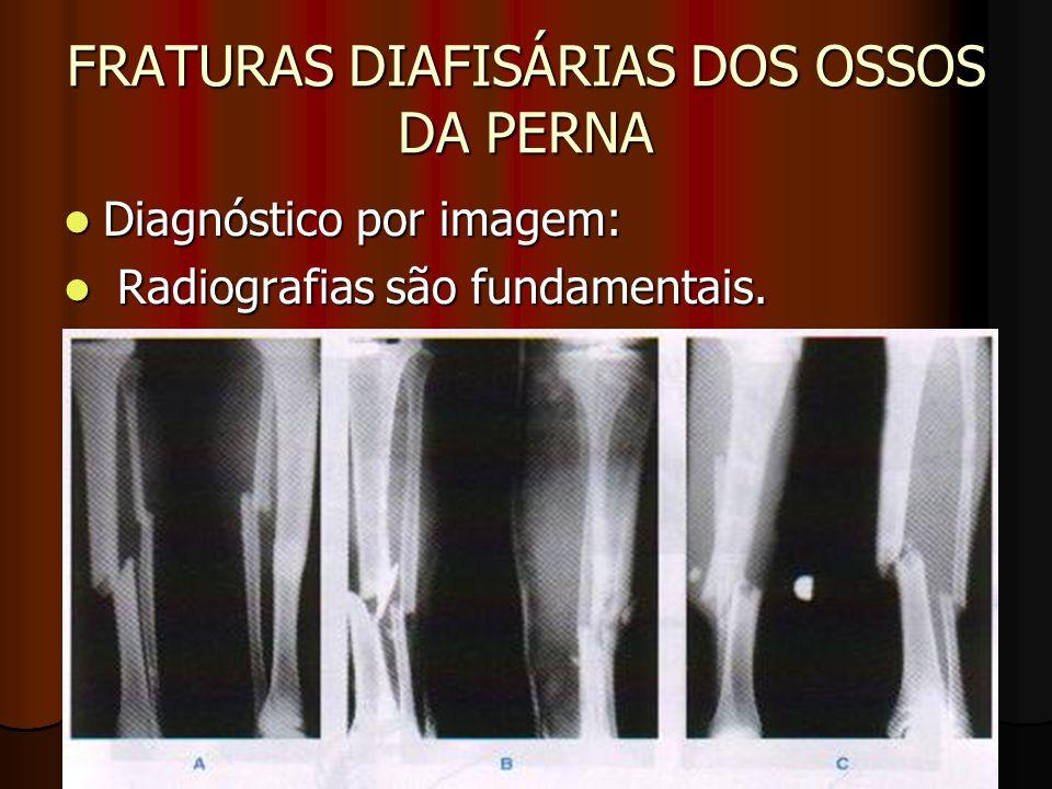 FRATURAS DIAFISÁRIAS DOS OSSOS DA PERNA Diagnóstico por imagem: Diagnóstico por imagem: Radiografias são fundamentais. Radiografias são fundamentais.