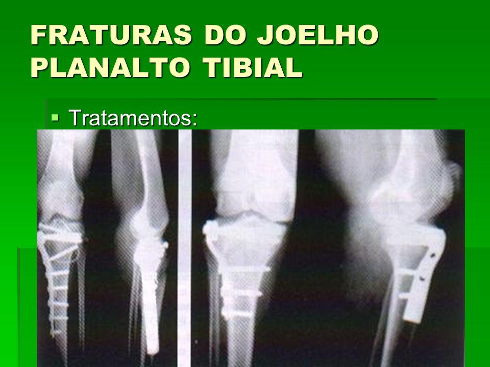 FRATURAS DO JOELHO PLANALTO TIBIAL Tratamentos: Tratamentos: