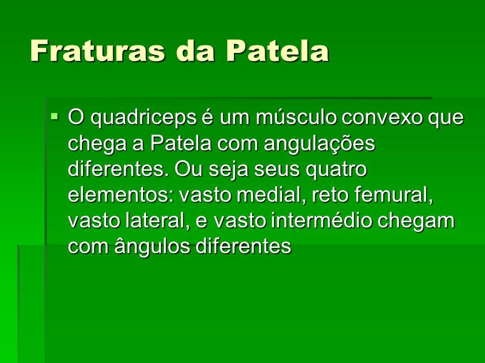 Fraturas da Patela O quadriceps é um músculo convexo que chega a Patela com angulações diferentes. Ou seja seus quatro elementos: vasto medial, reto f