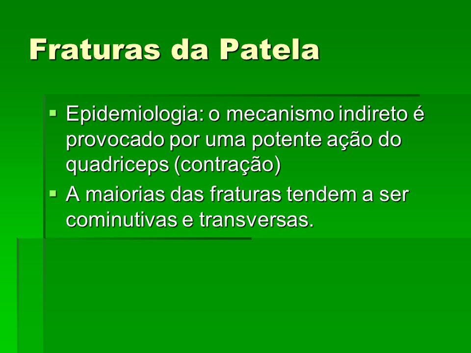 Fraturas da Patela Epidemiologia: o mecanismo indireto é provocado por uma potente ação do quadriceps (contração) Epidemiologia: o mecanismo indireto