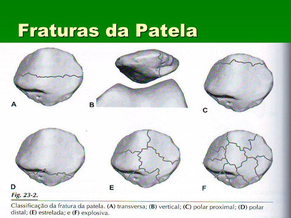 Fraturas da Patela Classificação: Classificação: Quadro23.2 Quadro23.2