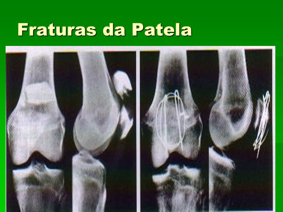 Fraturas da Patela Fig 33.2 Fig 33.2
