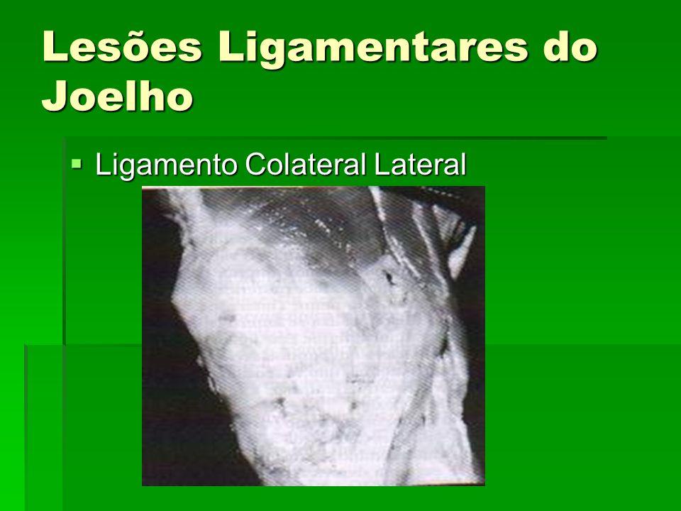 Lesões Ligamentares do Joelho Ligamento Colateral Lateral Ligamento Colateral Lateral