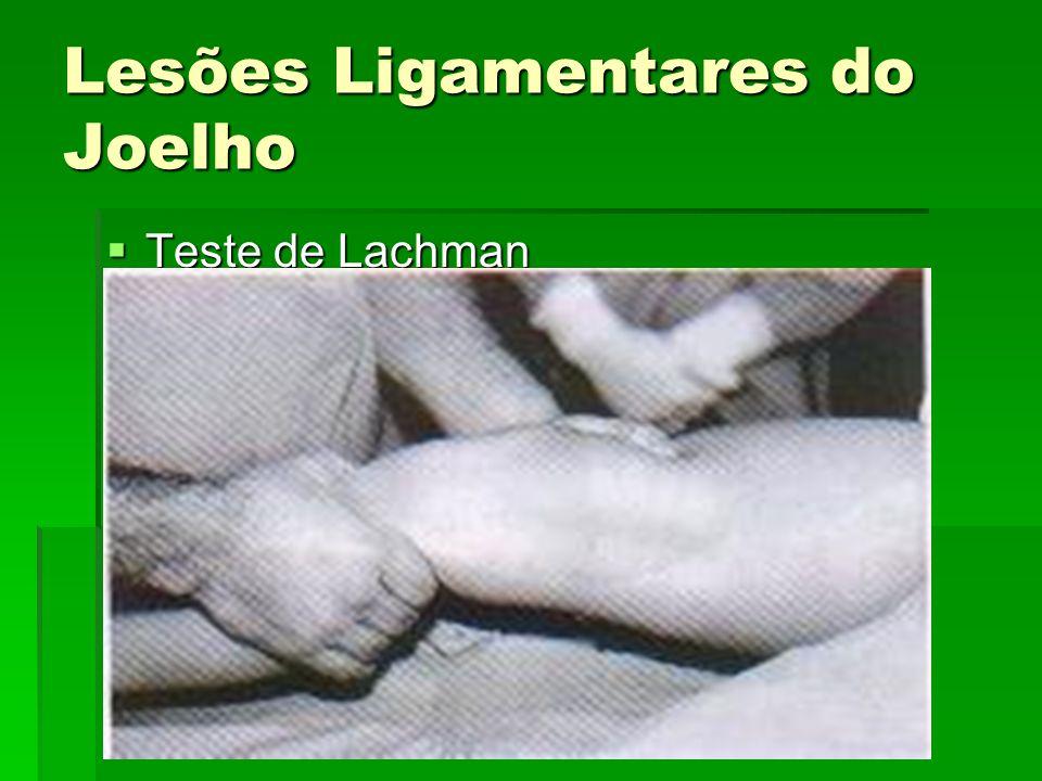 Lesões Ligamentares do Joelho Teste de Lachman Teste de Lachman