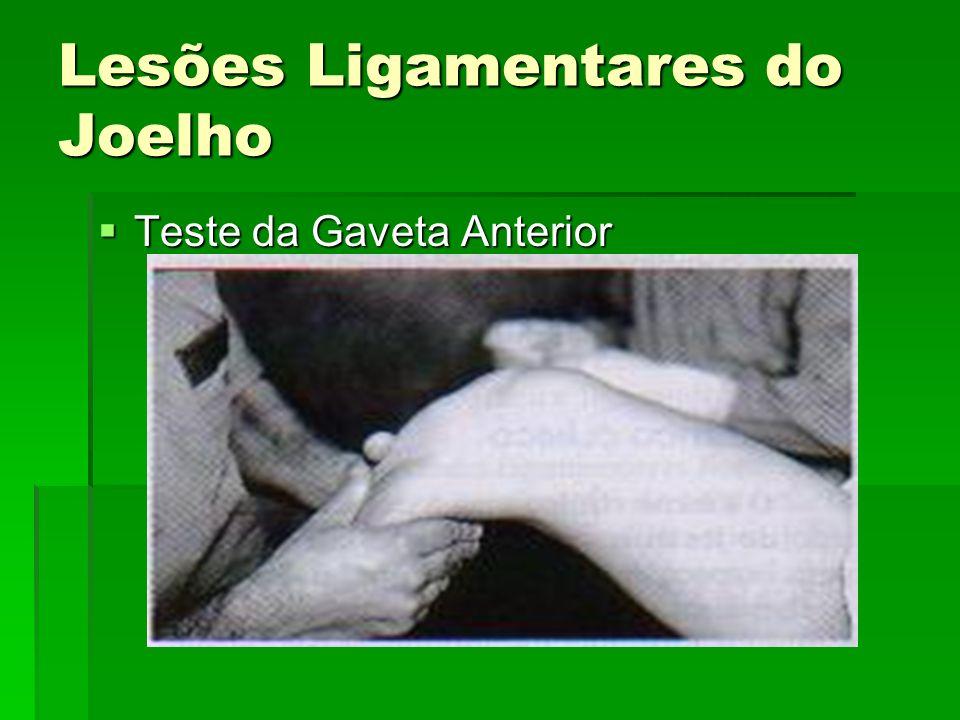 Lesões Ligamentares do Joelho Teste da Gaveta Anterior Teste da Gaveta Anterior