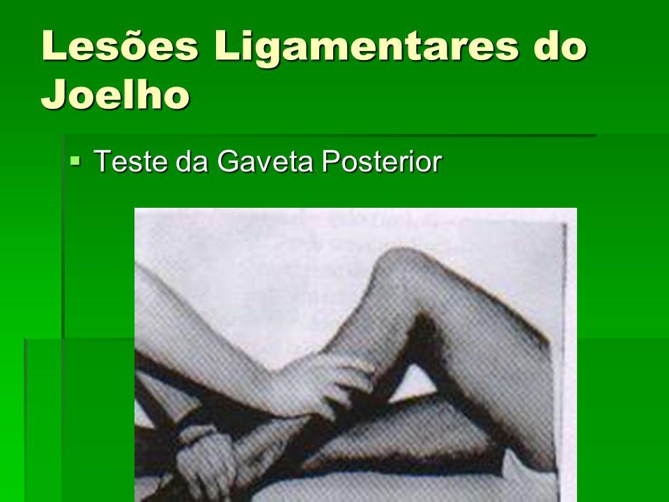 Lesões Ligamentares do Joelho Teste da Gaveta Posterior Teste da Gaveta Posterior