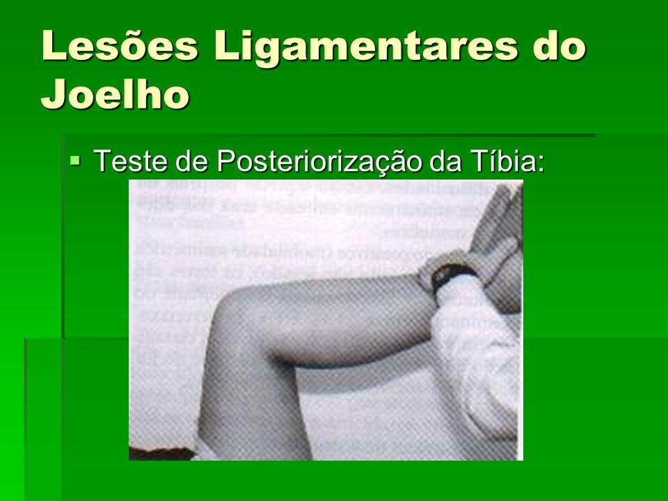 Lesões Ligamentares do Joelho Teste de Posteriorização da Tíbia: Teste de Posteriorização da Tíbia: