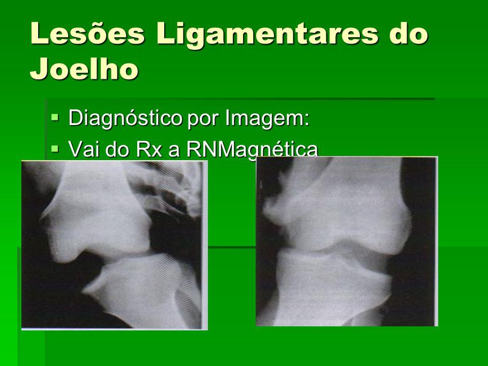 Lesões Ligamentares do Joelho Diagnóstico por Imagem: Diagnóstico por Imagem: Vai do Rx a RNMagnética Vai do Rx a RNMagnética