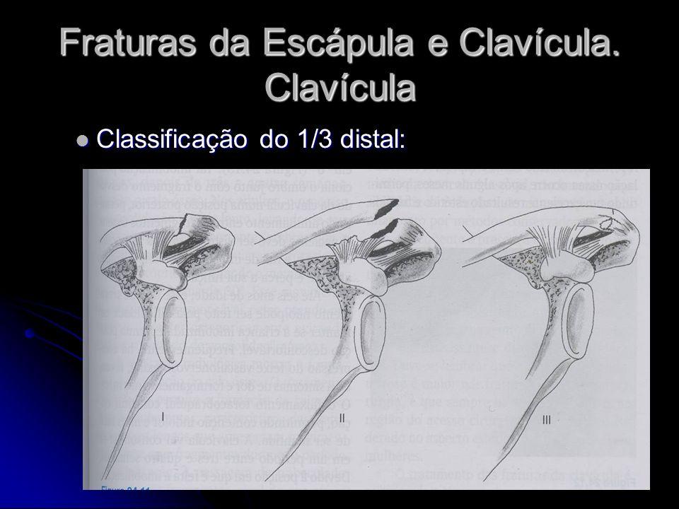 Fraturas da Escápula e Clavícula.Clavícula Tratamento pode ser cirúrgico ou conservador.