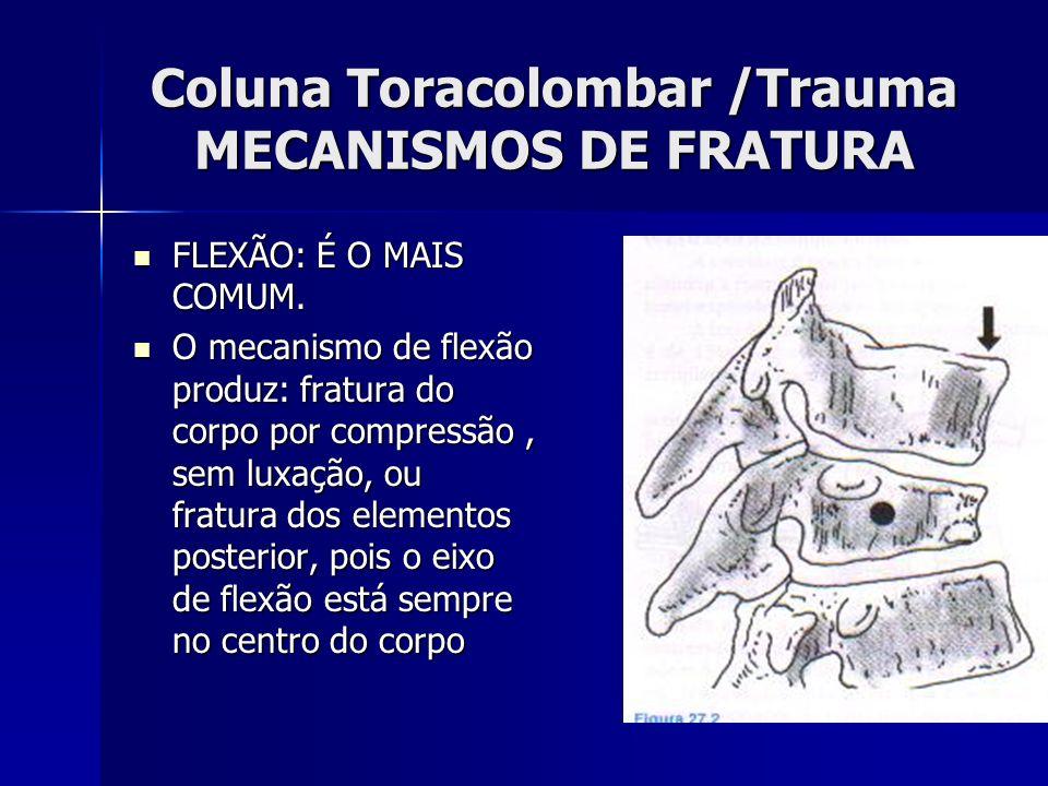 Coluna Toracolombar /Trauma MECANISMOS DE FRATURA FLEXÃO: É O MAIS COMUM.