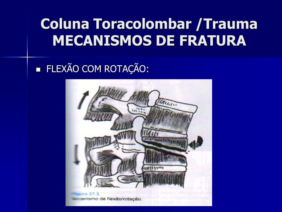 Coluna Toracolombar /Trauma MECANISMOS DE FRATURA FLEXÃO COM ROTAÇÃO: FLEXÃO COM ROTAÇÃO: