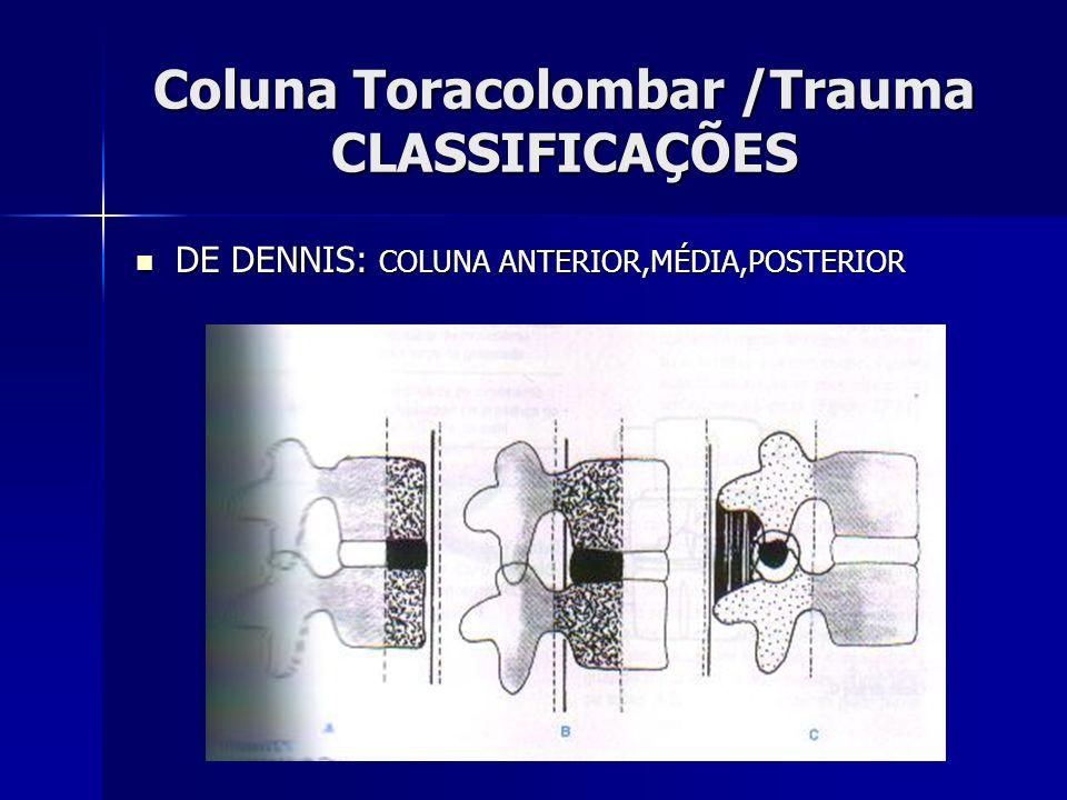 Coluna Toracolombar /Trauma CLASSIFICAÇÕES DE DENNIS: COLUNA ANTERIOR,MÉDIA,POSTERIOR DE DENNIS: COLUNA ANTERIOR,MÉDIA,POSTERIOR