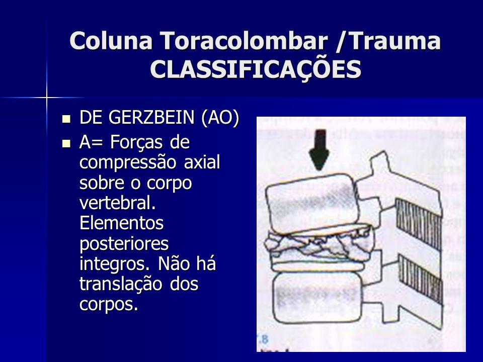 Coluna Toracolombar /Trauma CLASSIFICAÇÕES DE GERZBEIN (AO) DE GERZBEIN (AO) A= Forças de compressão axial sobre o corpo vertebral.