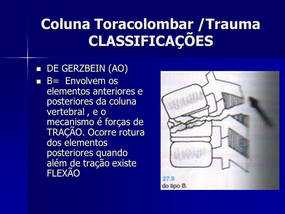 Coluna Toracolombar /Trauma CLASSIFICAÇÕES DE GERZBEIN (AO) DE GERZBEIN (AO) B= Envolvem os elementos anteriores e posteriores da coluna vertebral, e o mecanismo é forças de TRAÇÃO.
