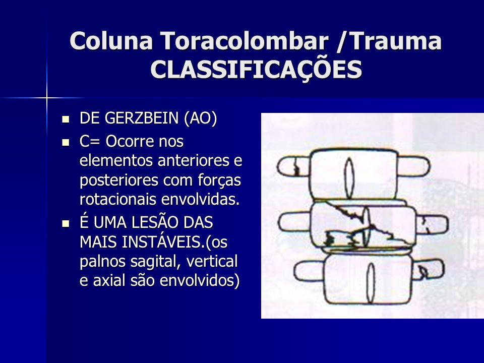 Coluna Toracolombar /Trauma CLASSIFICAÇÕES DE GERZBEIN (AO) DE GERZBEIN (AO) C= Ocorre nos elementos anteriores e posteriores com forças rotacionais envolvidas.