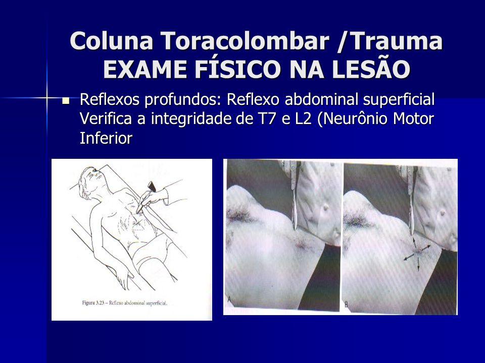 Coluna Toracolombar /Trauma EXAME FÍSICO NA LESÃO Reflexos profundos: Reflexo abdominal superficial Verifica a integridade de T7 e L2 (Neurônio Motor Inferior Reflexos profundos: Reflexo abdominal superficial Verifica a integridade de T7 e L2 (Neurônio Motor Inferior