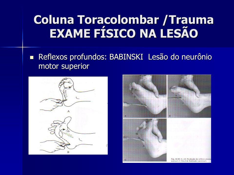 Coluna Toracolombar /Trauma EXAME FÍSICO NA LESÃO Reflexos profundos: BABINSKI Lesão do neurônio motor superior Reflexos profundos: BABINSKI Lesão do neurônio motor superior