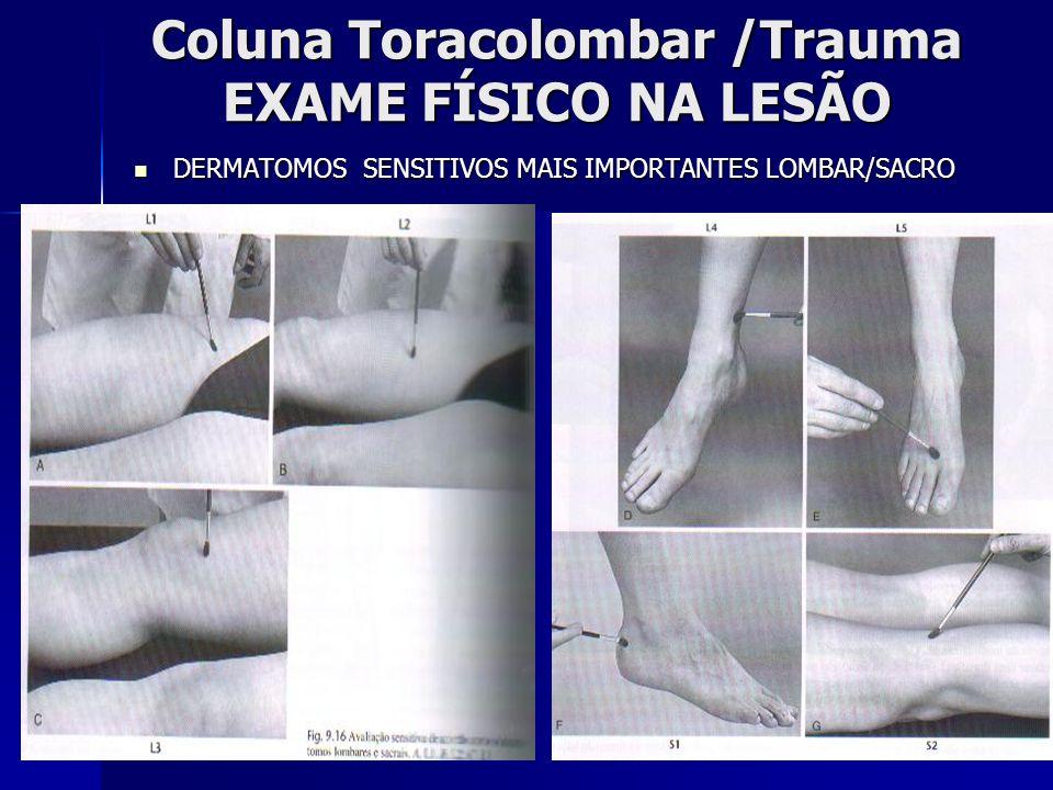 Coluna Toracolombar /Trauma EXAME FÍSICO NA LESÃO DERMATOMOS SENSITIVOS MAIS IMPORTANTES LOMBAR/SACRO DERMATOMOS SENSITIVOS MAIS IMPORTANTES LOMBAR/SACRO