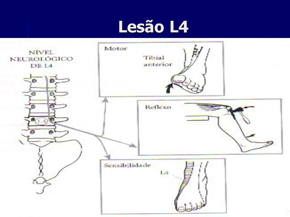 Lesão L4