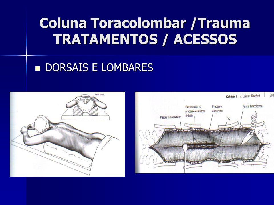 Coluna Toracolombar /Trauma TRATAMENTOS / ACESSOS DORSAIS E LOMBARES DORSAIS E LOMBARES