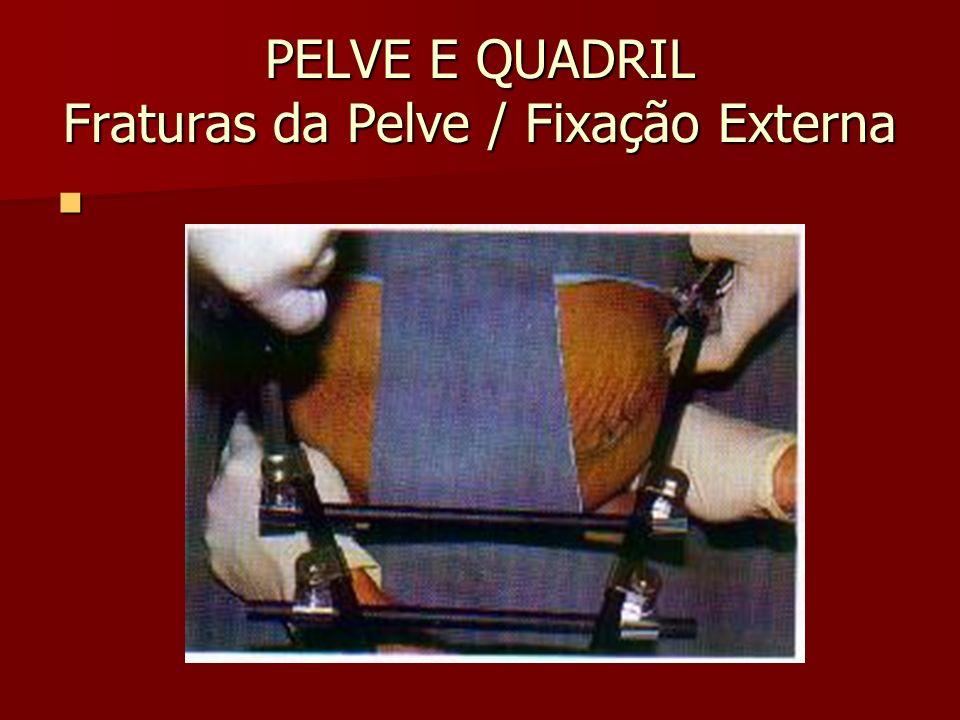PELVE E QUADRIL Fraturas da Pelve / Fixação Externa