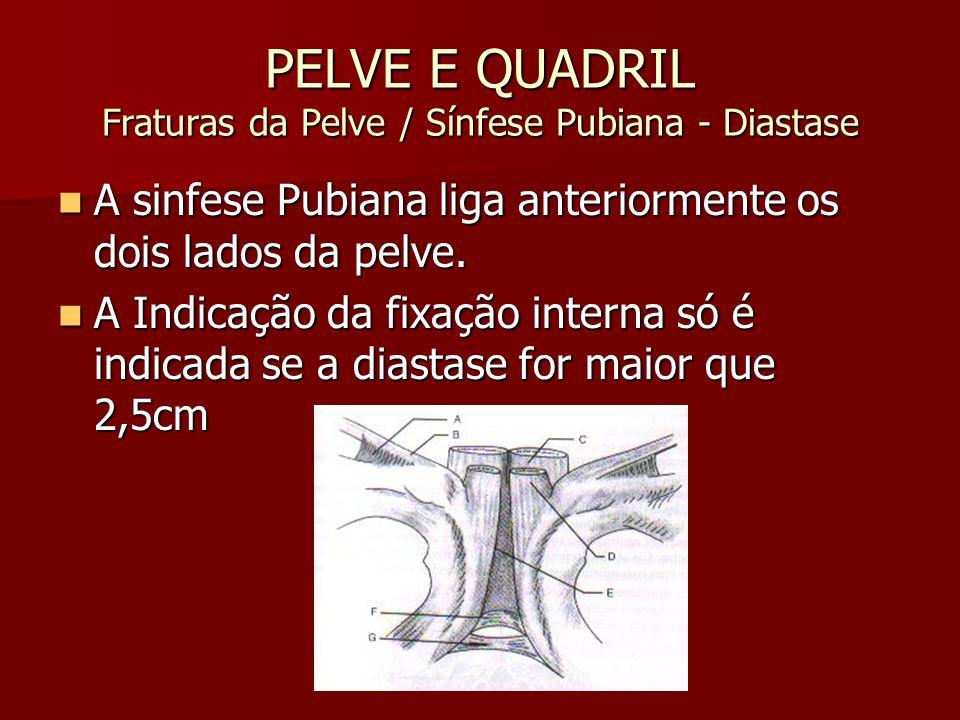 PELVE E QUADRIL Fraturas da Pelve / Sínfese Pubiana - Diastase A sinfese Pubiana liga anteriormente os dois lados da pelve. A sinfese Pubiana liga ant