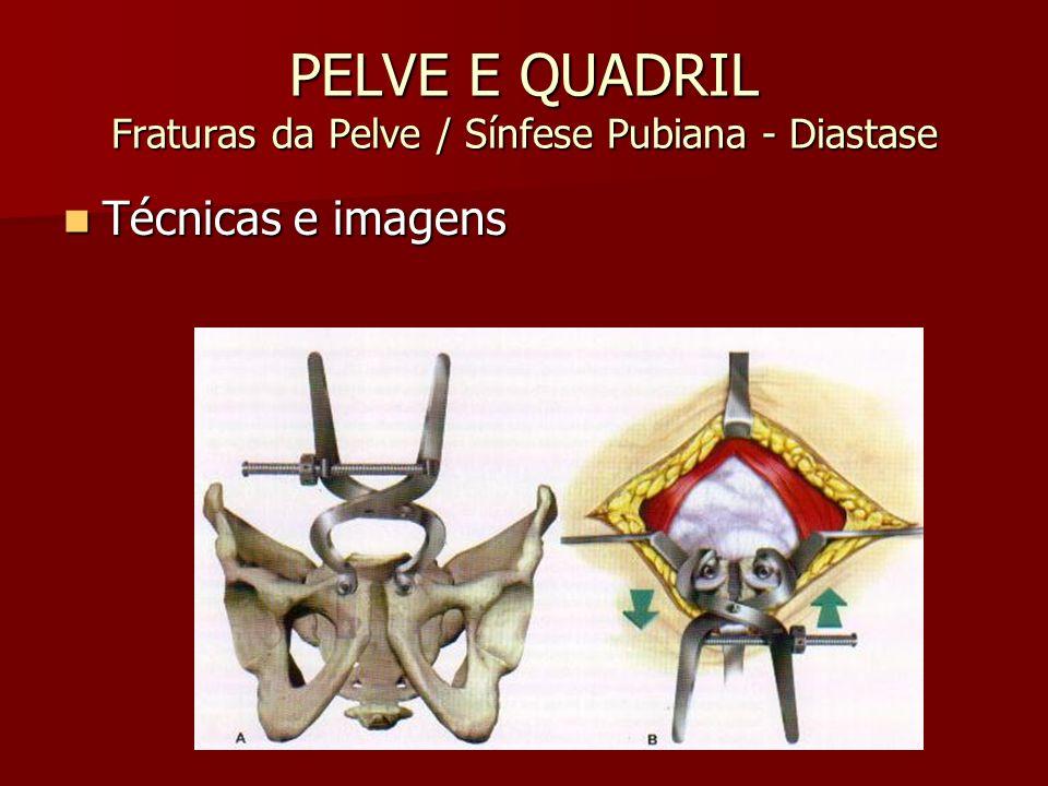 PELVE E QUADRIL Fraturas da Pelve / Sínfese Pubiana - Diastase Técnicas e imagens Técnicas e imagens