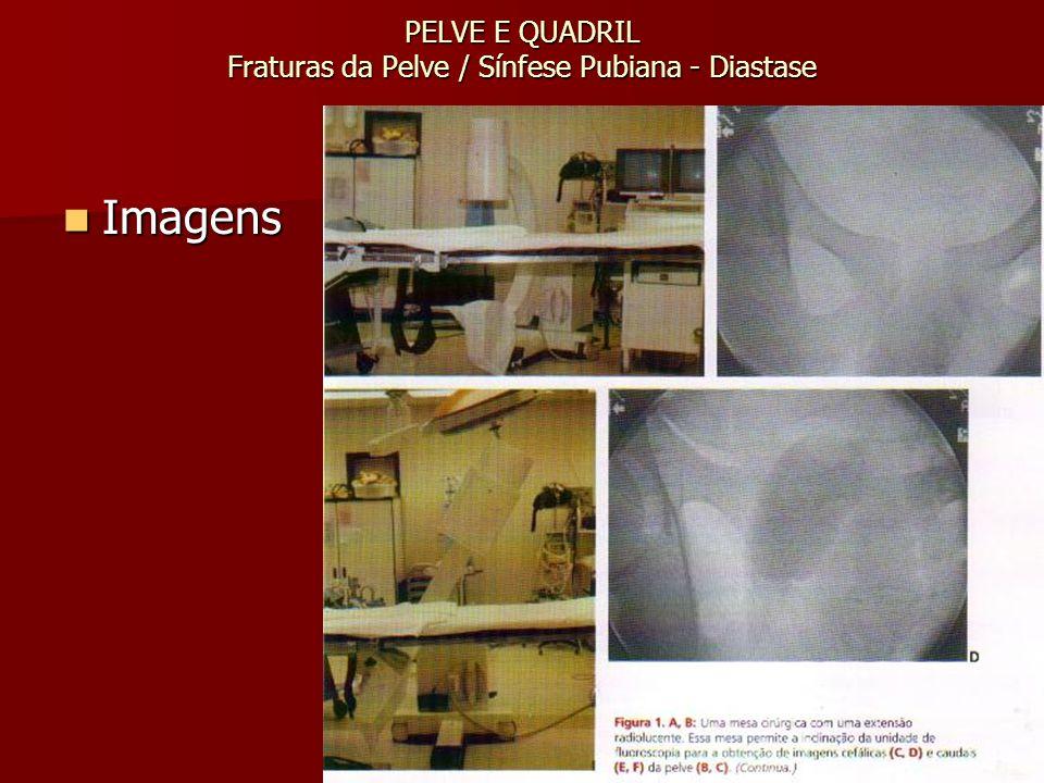 PELVE E QUADRIL Fraturas da Pelve / Sínfese Pubiana - Diastase Imagens Imagens