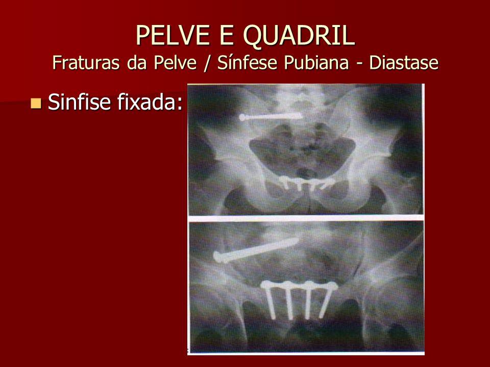 PELVE E QUADRIL Fraturas da Pelve / Sínfese Pubiana - Diastase Sinfise fixada: Sinfise fixada:
