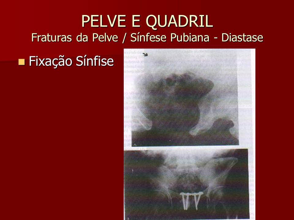 PELVE E QUADRIL Fraturas da Pelve / Sínfese Pubiana - Diastase Fixação Sínfise Fixação Sínfise