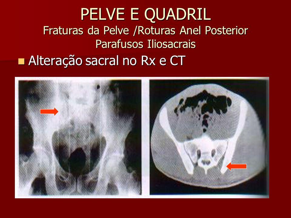 PELVE E QUADRIL Fraturas da Pelve /Roturas Anel Posterior Parafusos Iliosacrais Alteração sacral no Rx e CT Alteração sacral no Rx e CT