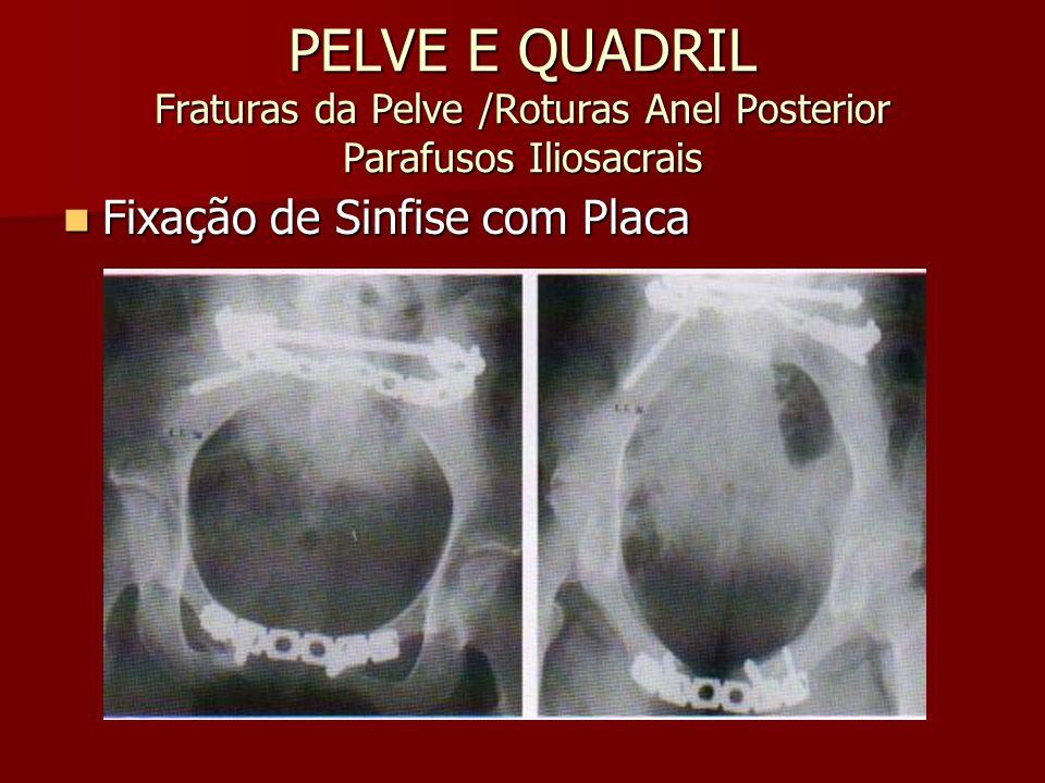 PELVE E QUADRIL Fraturas da Pelve /Roturas Anel Posterior Parafusos Iliosacrais Fixação de Sinfise com Placa Fixação de Sinfise com Placa