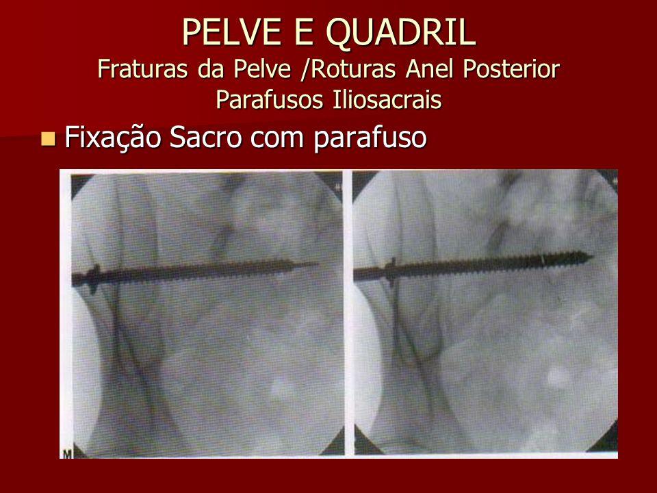 PELVE E QUADRIL Fraturas da Pelve /Roturas Anel Posterior Parafusos Iliosacrais Fixação Sacro com parafuso Fixação Sacro com parafuso