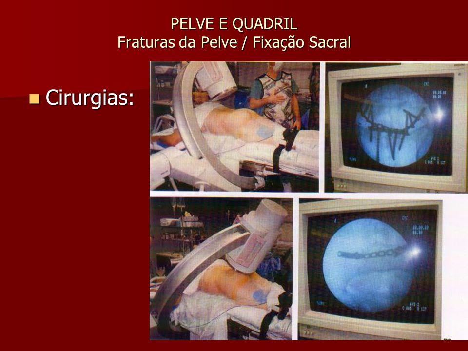 PELVE E QUADRIL Fraturas da Pelve / Fixação Sacral Cirurgias: Cirurgias: