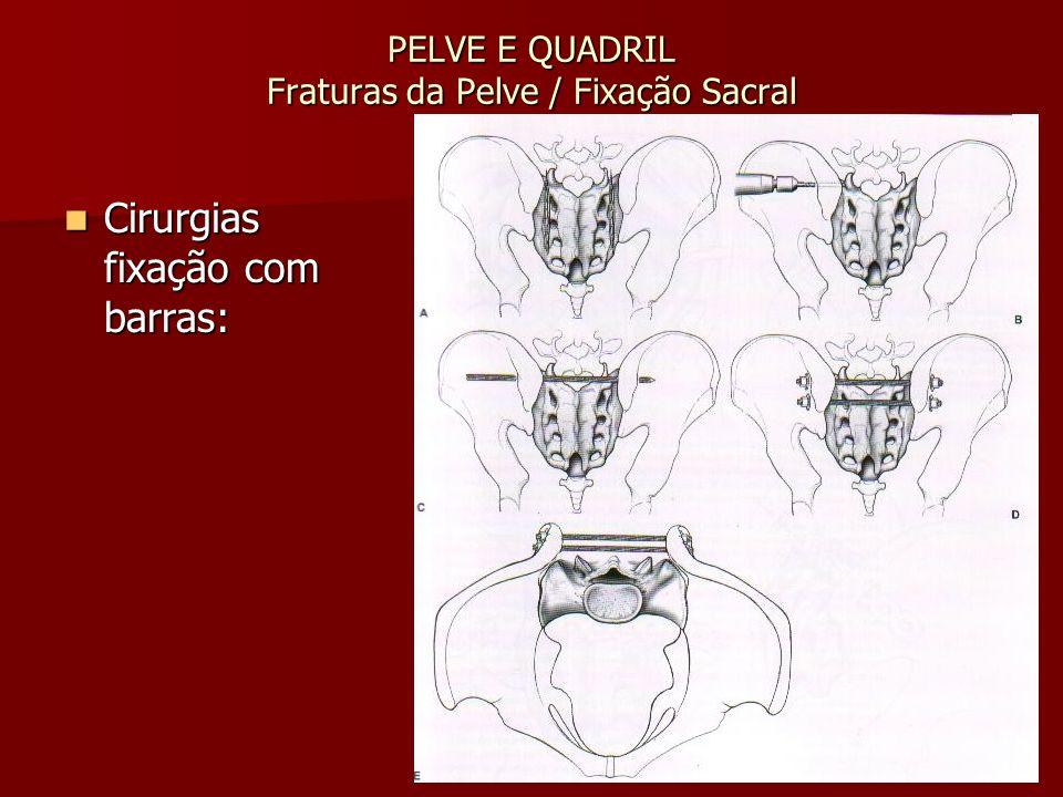 PELVE E QUADRIL Fraturas da Pelve / Fixação Sacral Cirurgias fixação com barras: Cirurgias fixação com barras:
