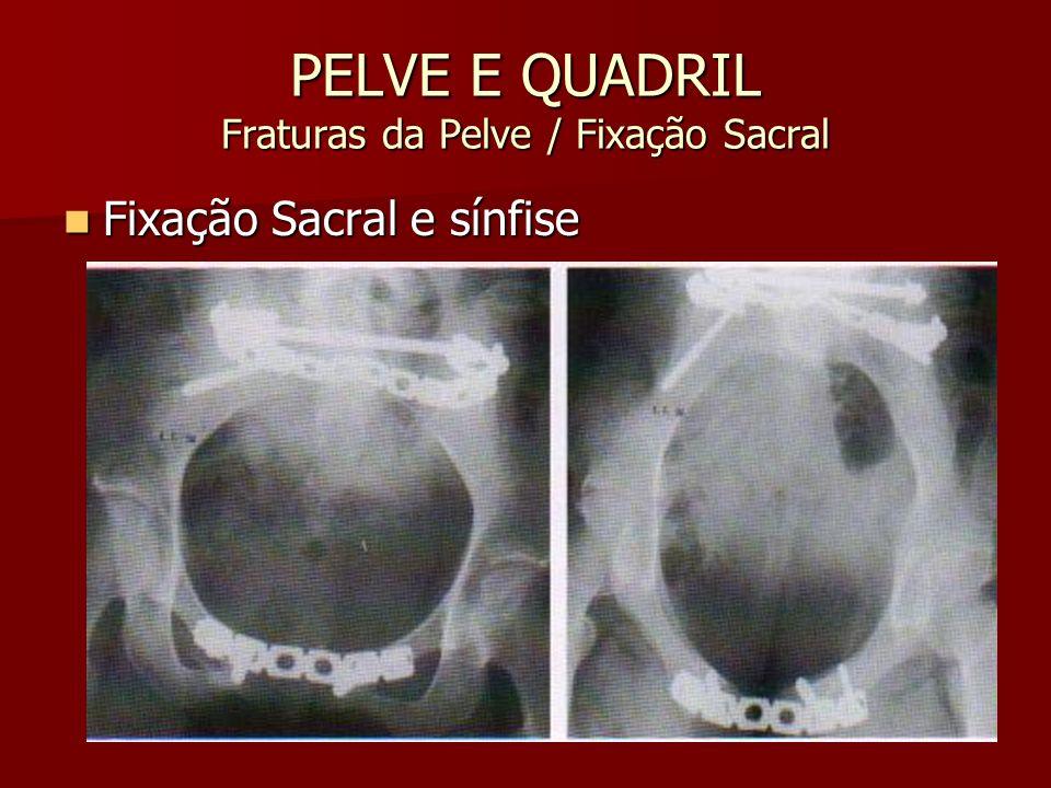 PELVE E QUADRIL Fraturas da Pelve / Fixação Sacral Fixação Sacral e sínfise Fixação Sacral e sínfise