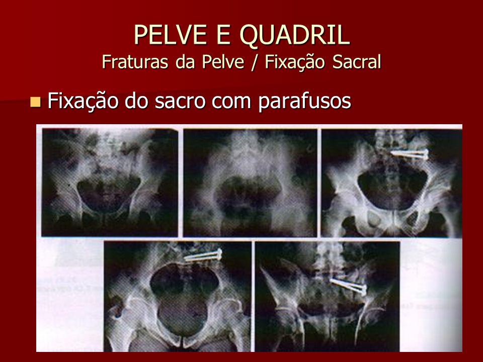 PELVE E QUADRIL Fraturas da Pelve / Fixação Sacral Fixação do sacro com parafusos Fixação do sacro com parafusos