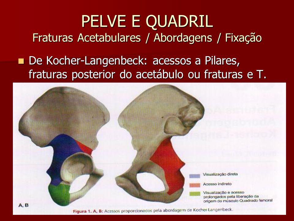 PELVE E QUADRIL Fraturas Acetabulares / Abordagens / Fixação De Kocher-Langenbeck: acessos a Pilares, fraturas posterior do acetábulo ou fraturas e T.