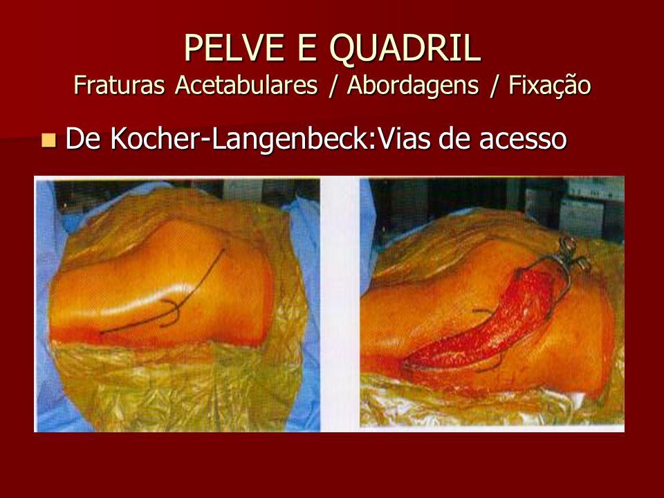 PELVE E QUADRIL Fraturas Acetabulares / Abordagens / Fixação De Kocher-Langenbeck:Vias de acesso De Kocher-Langenbeck:Vias de acesso