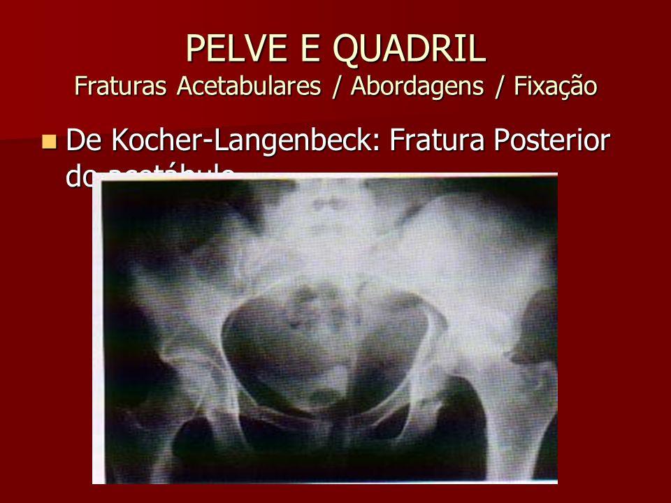 PELVE E QUADRIL Fraturas Acetabulares / Abordagens / Fixação De Kocher-Langenbeck: Fratura Posterior do acetábulo De Kocher-Langenbeck: Fratura Poster