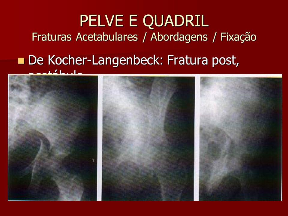 PELVE E QUADRIL Fraturas Acetabulares / Abordagens / Fixação De Kocher-Langenbeck: Fratura post, acetábulo De Kocher-Langenbeck: Fratura post, acetábu