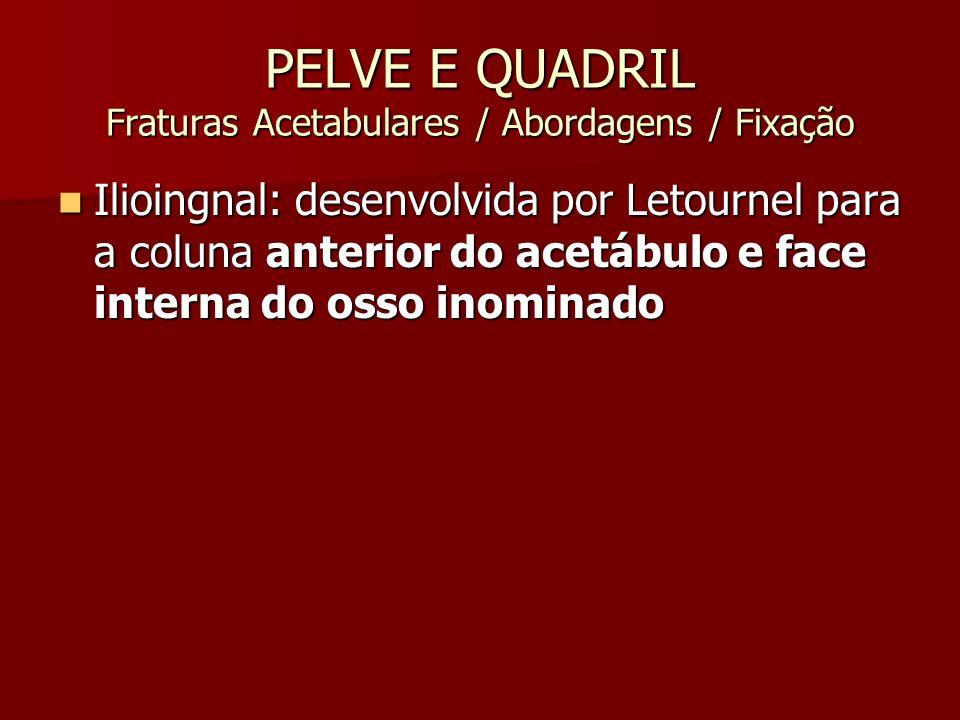 PELVE E QUADRIL Fraturas Acetabulares / Abordagens / Fixação Ilioingnal: desenvolvida por Letournel para a coluna anterior do acetábulo e face interna