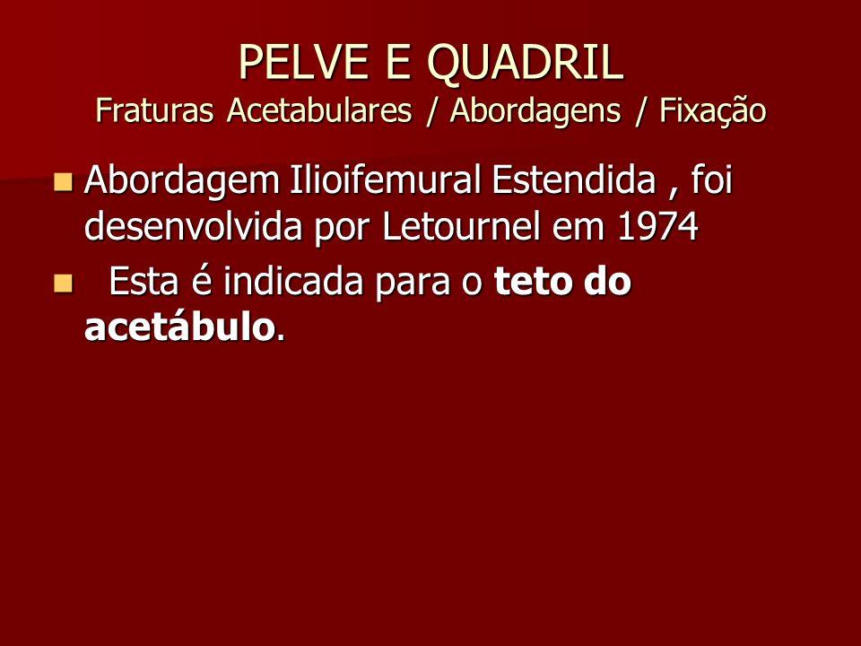 PELVE E QUADRIL Fraturas Acetabulares / Abordagens / Fixação Abordagem Ilioifemural Estendida, foi desenvolvida por Letournel em 1974 Abordagem Ilioif