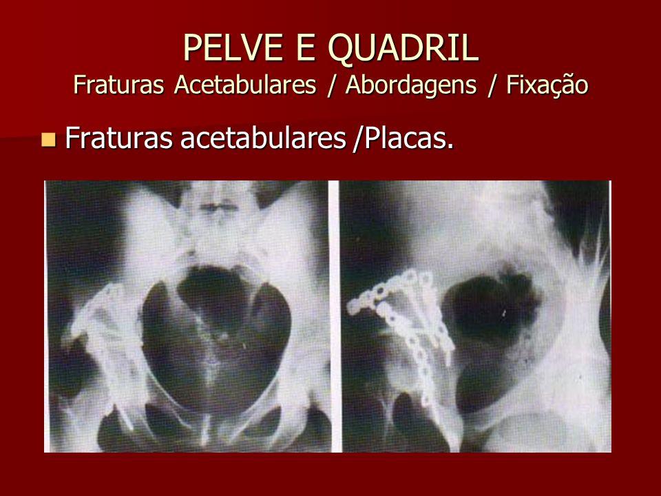 PELVE E QUADRIL Fraturas Acetabulares / Abordagens / Fixação Fraturas acetabulares /Placas. Fraturas acetabulares /Placas.